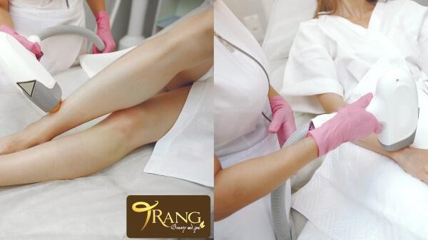 Spa triệt lông chân uy tín ở Long Biên, Hà Nội
