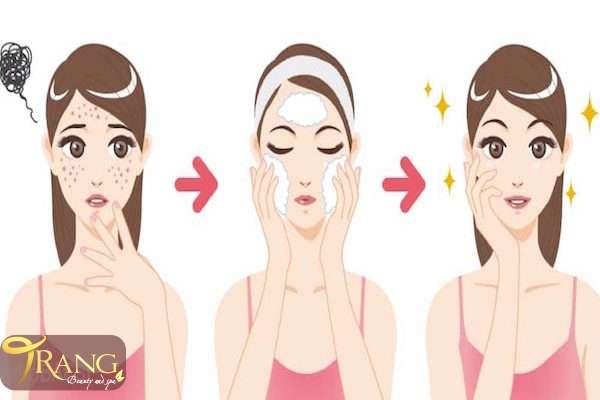 Cách chăm sóc da mụn từ bên trong