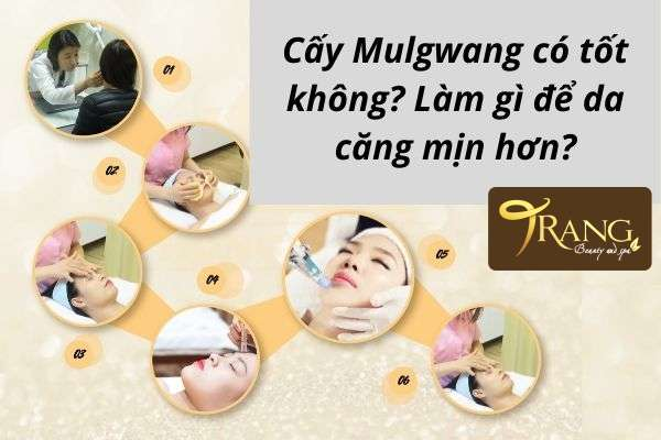 Cấy Mulgwang có hại không