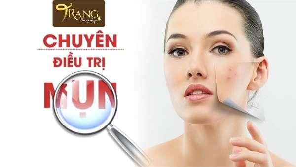 Điều trị mụn tại huyện Gia Lâm, Hà Nội
