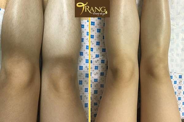 Triệt lông chân ở Ngọc Lâm, Long Biên