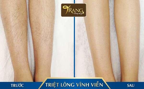 Spa triệt lông chân tốt nhất huyện Đức Giang, Long Biên