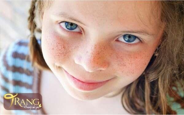 Trị tàn nhang cho trẻ em tại nhà