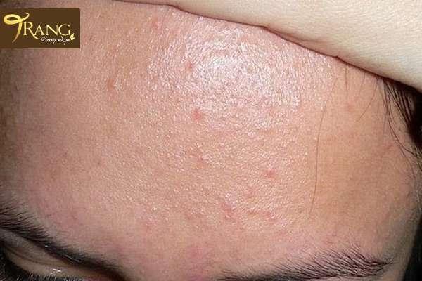 Điều trị da bị mụn ẩn, trang spa