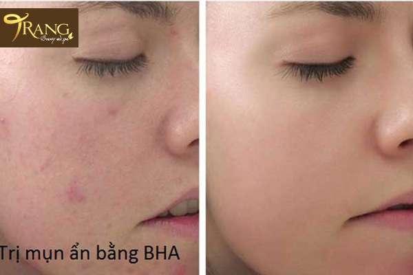 Điều trị mụn ẩn bằng BHA