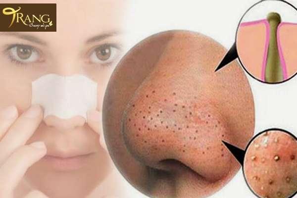 Điều trị mụn đầu đen ở mũi, trang spa