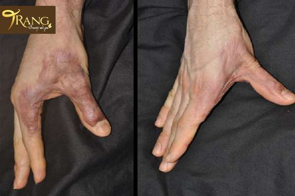 Điều trị sẹo bỏng lâu năm, trang spa