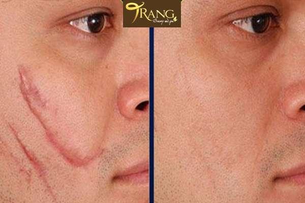 Điều trị sẹo lâu năm ở mặt, trang spa