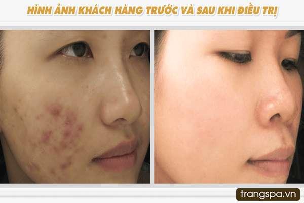 Chi phí điều trị mụn ẩn ở Trang Beauty Spa