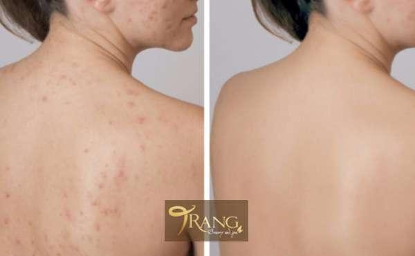 Điều trị mụn lưng và viêm nang lông