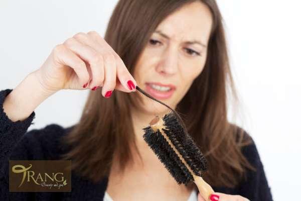 Rụng tóc nhiều là biểu hiện của bệnh gì