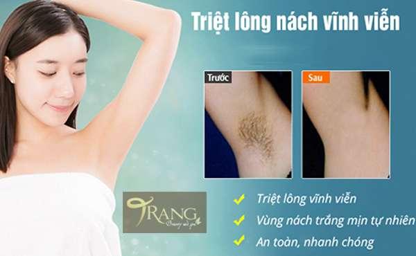 Triệt lông nách ở đâu tốt Việt Hưng, Long Biên