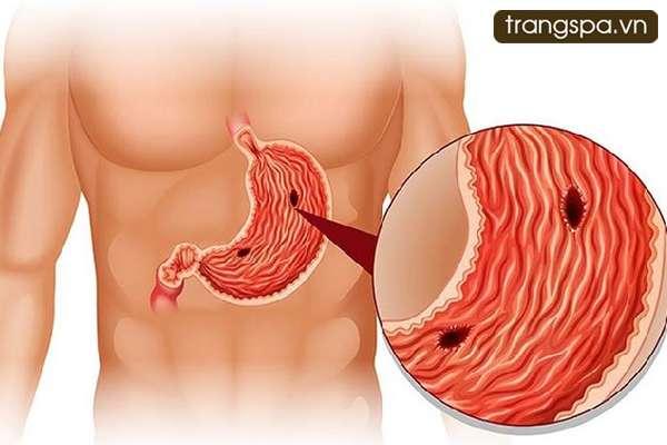 Viêm dạ dày ruột cấp có nguy hiểm không